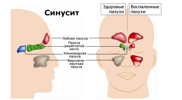 Гнойный синусит: симптомы, лечение у ребенка и взрослого