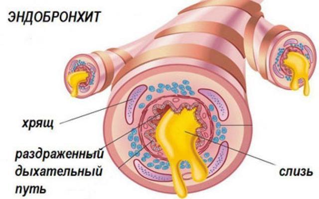Эндобронхит: методы диагностики и способы лечения