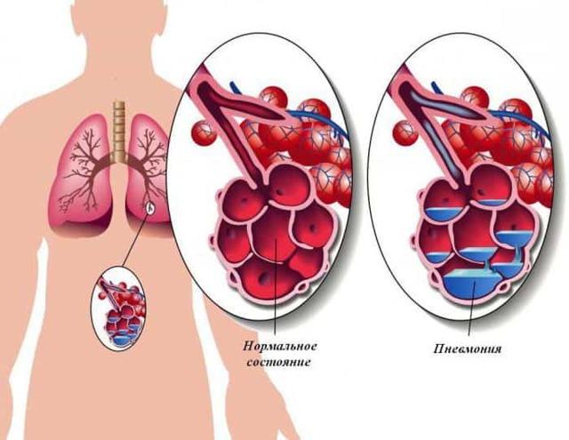 Чем опасен бронхит: осложнения острого и хронического заболевания