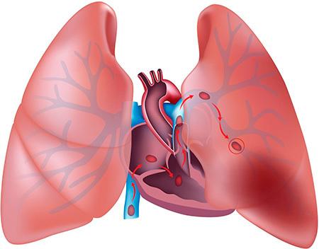 Тромб в легких: симптомы, лечение и прогноз после операции