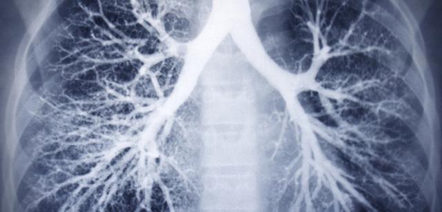 Пневмония без кашля: может ли такое быть?