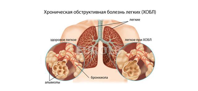 Большой риск заболеть ХОБЛ у женщин страдающих астмой