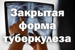 Закрытая форма туберкулеза: симптомы, передается или нет
