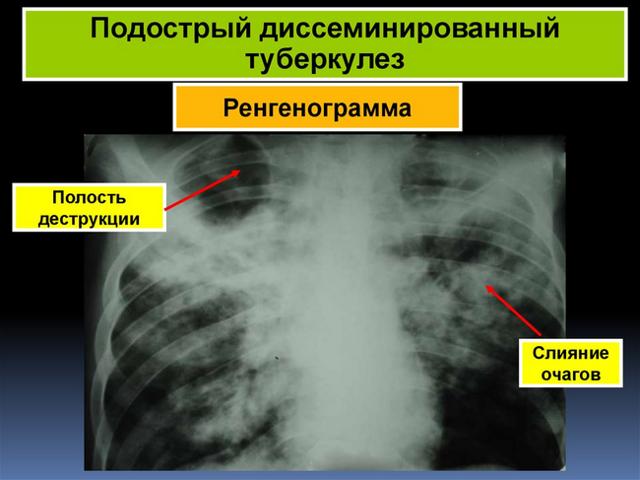 Диссеминированный туберкулез легких: симптомы и способы лечения