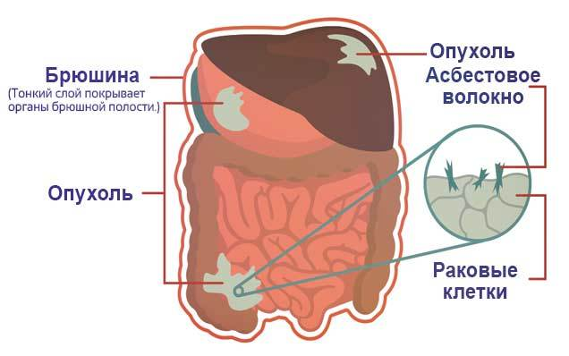 Злокачественная мезотелиома плевры: симптомы, лечение, прогноз