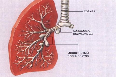 Бронхоэктатическая болезнь: причины, симптомы, диагностика и лечение