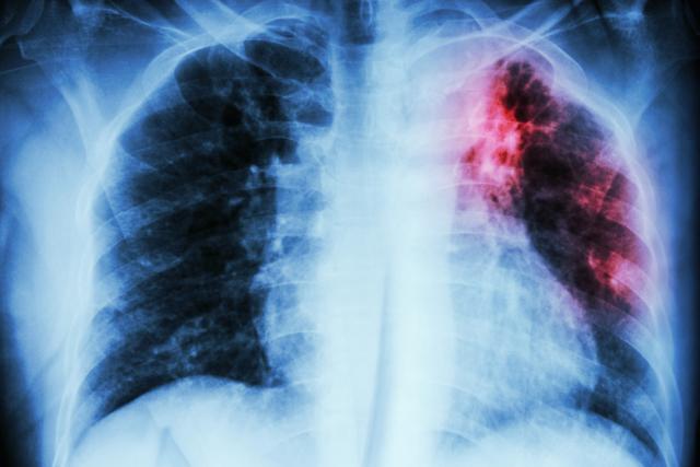 Очаговый туберкулез легких: лечение, диагностика и проноз