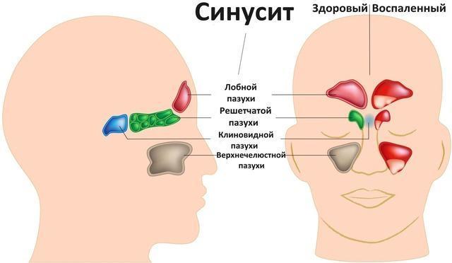 Синусит и гайморит: чем отличаются, лекарства