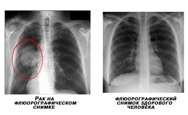 Расширение средостения на рентгене, флюорографии: причины