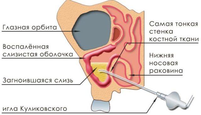 Грибковый гайморит: причины, симптомы, диагностика, лечение