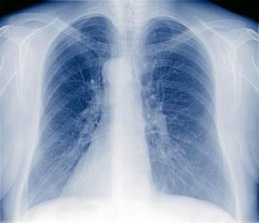 Двусторонняя пневмония у ребенка: симптомы, лечение и последствия