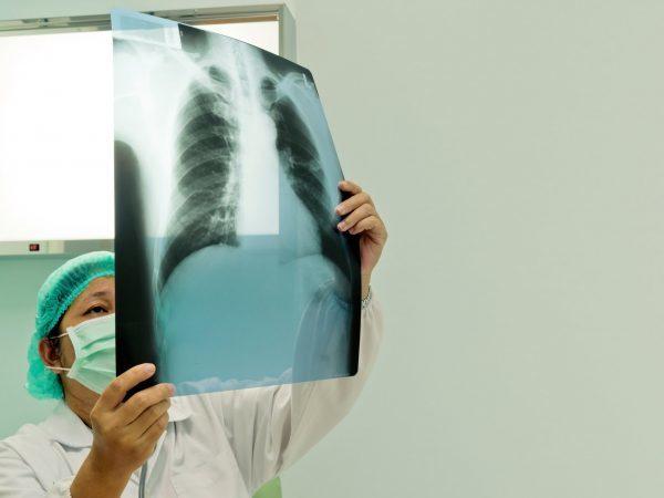 Рак легких у детей: лечение, признаки и симптомы