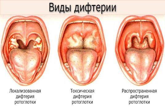 Удушье в области шеи и горла: причины и лечение