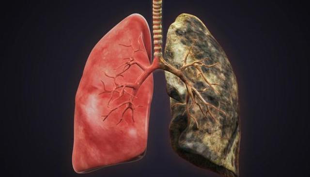 Удаление легкого при раке: последствия, сколько живут