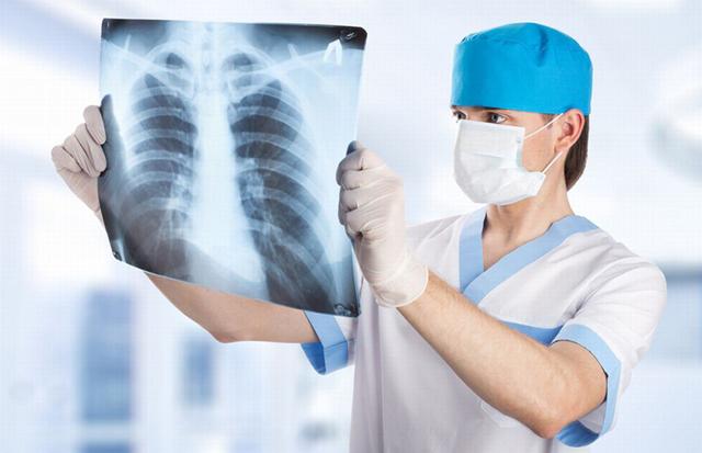 Цирротический туберкулез легких: как лечится и какой прогноз?