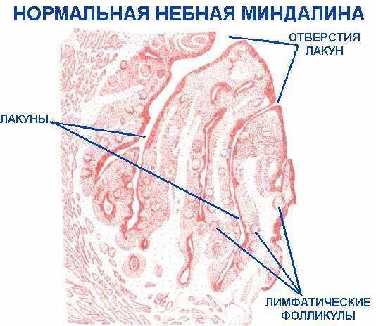 Хронический тонзиллит: пробки в миндалинах, лечение
