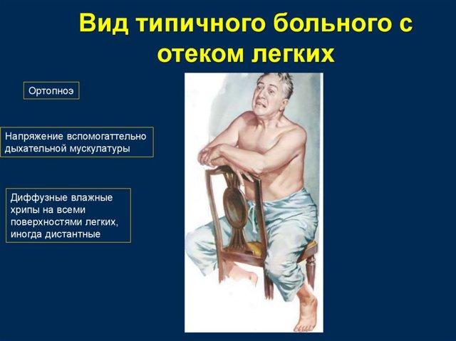Отек легких: причины, симптомы, лечение, помощь