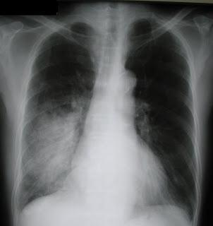 Односторонняя пневмония: симптомы, диагностика, лечение
