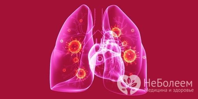 Двухсторонняя пневмония: симптомы, лечение, диагностика