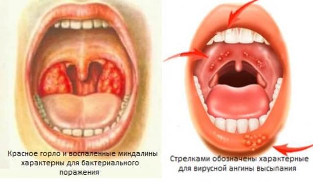 Вирусная ангина у детей и взрослых: симптомы, как лечить