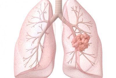 Лимфаденопатия легких: виды, симптомы и способы лечения