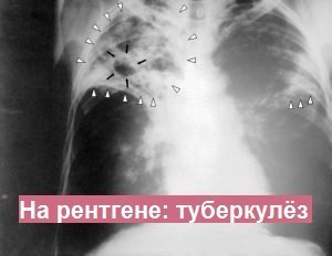 ПЦР на туберкулез вместо Манту: будет ли результат достоверный?