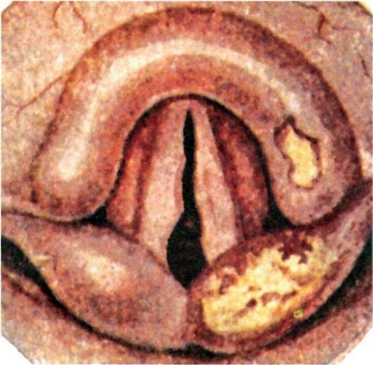 Туберкулез гортани: симптомы, особенности лечения