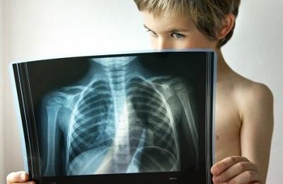 Очаговая пневмония у детей: симптомы, методы лечения, профилактика
