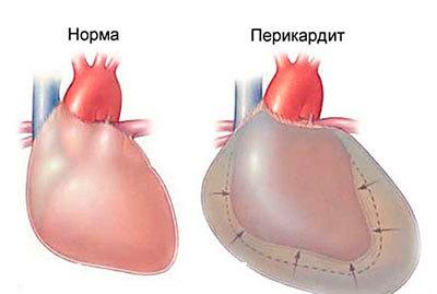 Почему болят ребра при кашле?