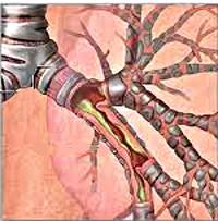 Катаральный бронхит: этиология, симптомы, диагностика, лечение