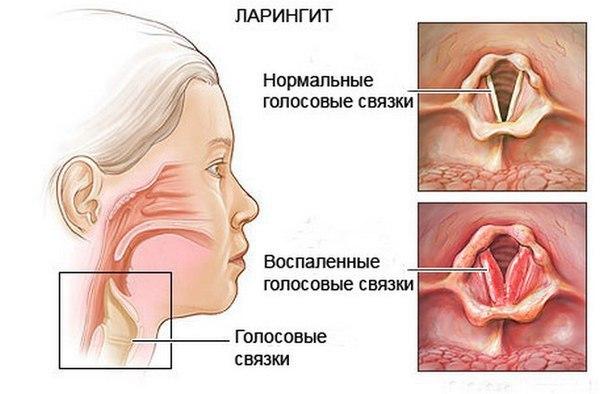 Стенозирующий ларингит: особенности, лечение