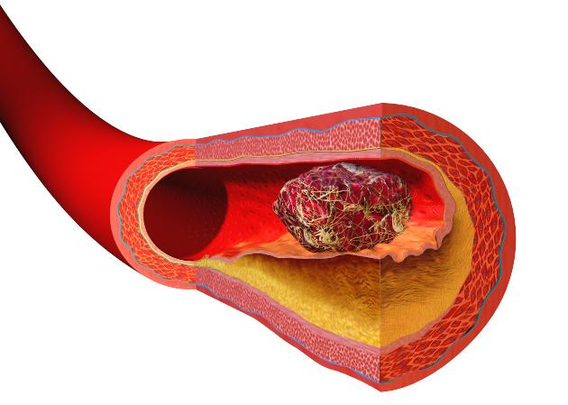 Инфаркт легкого: причины, симптомы, лечение и последствия