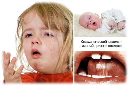 Коклюш или нет: внешние признаки, профилактика