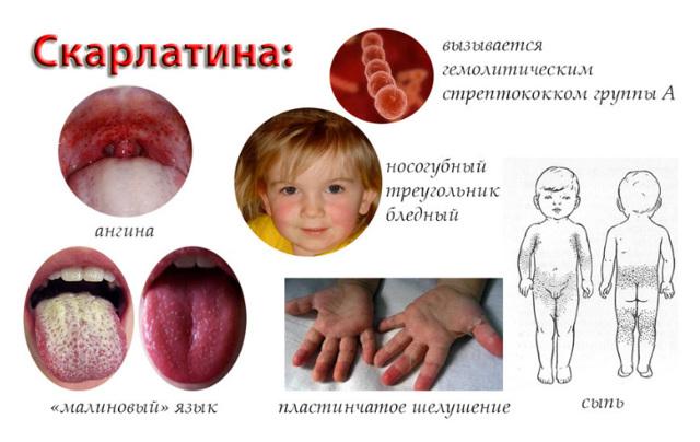 Прививка от скарлатины: как называется, когда делается