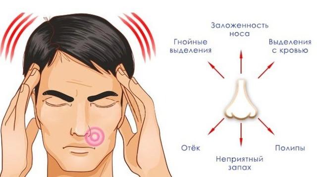 Одонтогенный синусит: разновидности, симптомы, лечение