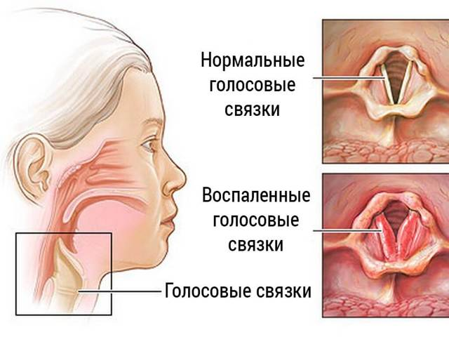 Неприятное жжение в горле: основные причины, лечение