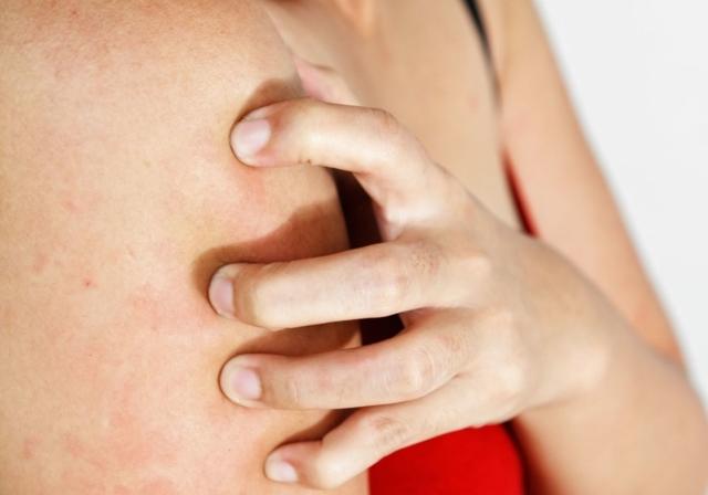 Сыпь при скарлатине у детей и взрослых: как выглядит