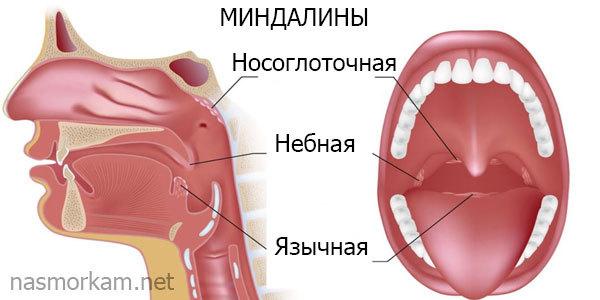 Белые пятна на миндалинах у ребенка и взрослого