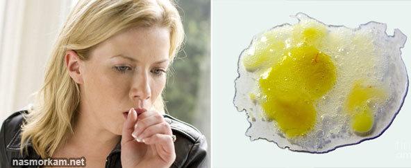 Желтая мокрота при кашле с температурой и без