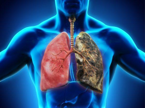 Мелкоклеточный рак легкого: симптомы, диагностика, лечение