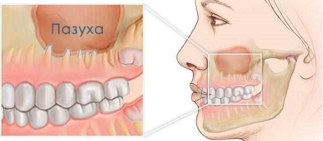 Гайморит: болят зубы, особенности и причины боли