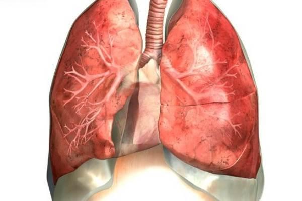 Пневмосклероз легких: признаки, лечение, продолжительность жизни