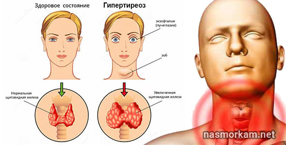 Боль в кадыке: причины и методы их диагностики, способы лечения