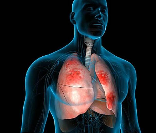 Хронический туберкулез лёгких: диссеминированный, открытый и закрытый