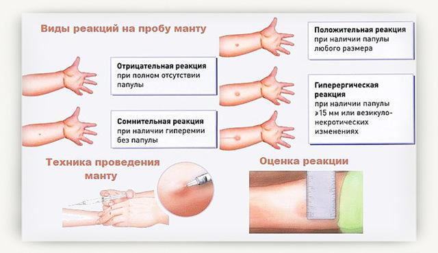 На какой день проверяют прививку манту у ребёнка