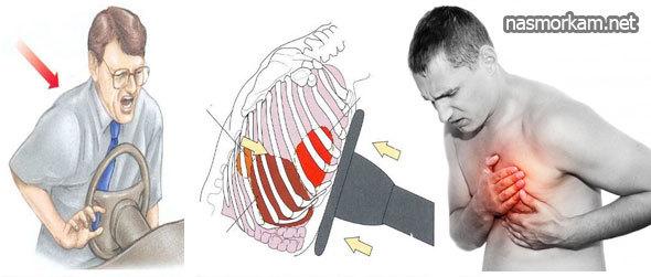 Кашель с болью в грудной клетке: причины, диагностика, лечение