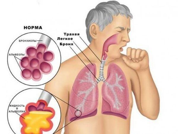 Какие есть основные причины кашля после еды?