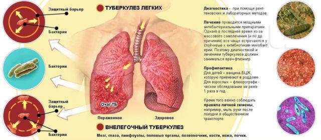 Прополис при туберкулезе: как правильно принимать прополис против туберкулеза