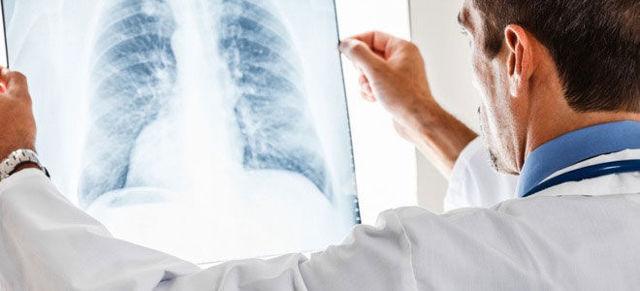 Инвалидность при туберкулезе лёгких - как получить инвалидность