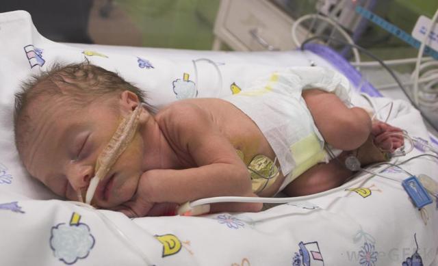 Внутриутробная пневмония у новорожденных – симптомы, лечение, последствия